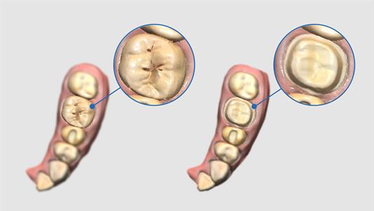Schema scan pre-opératoire