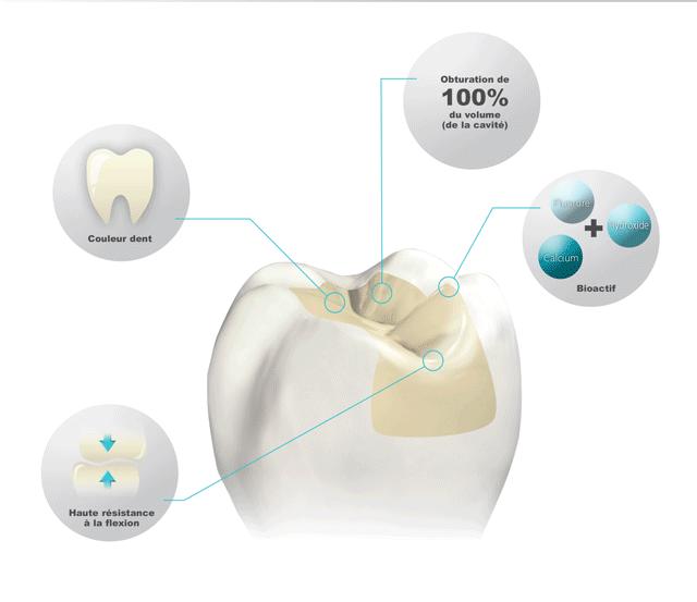 effet du cention forte sur la dent