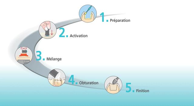 les différentes étapes du Cention Forte