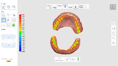 schema analyse d'occlusion